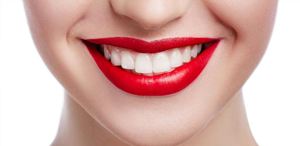 estetica dentale varese
