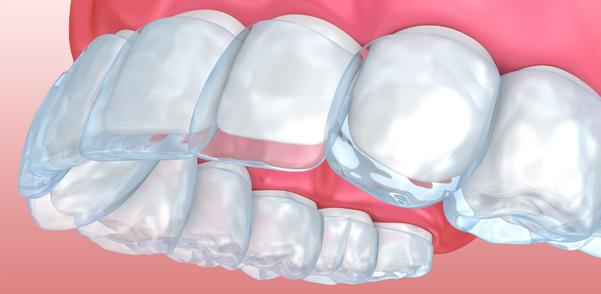 Ortodonzia invisibile Varese